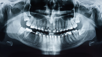 Dental X-Ray Photo Of Human Skull And Teeth With Braces