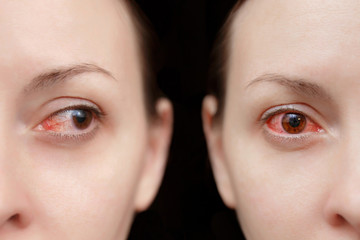 Close up annoyed red blood human girl eyes affected by conjunctivitis or after flu cold allergy. Looking camera aside. Disease treatment medicine health concept. Copy space. Workspace mockup template.