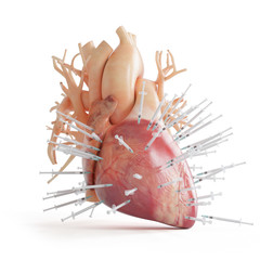 3d rendered illustration of a heart spiked with syringes