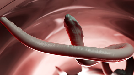 3d rendered illustration of a roundworm in a human colon