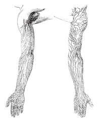 Lymphatic Vessels and Nodes of the Arms, vintage illustration.