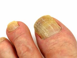 Fußzehen mit Nagelpilz