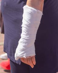 A broken arm in a woman's cast
