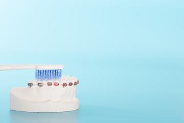 Orthodontic dental model in oral health concept.