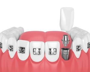 3d render of teeth with orthodontic braces and dental implant