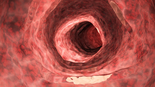3d rendered medically accurate illustration of an inflamed colon