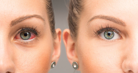 Red eye before and after eyewash
