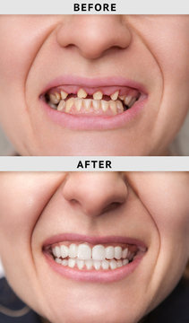 smile after and before dental crown installation process