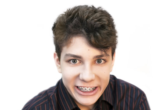 Dissatisfied, an angry teenager on a white background shows that he is already tired of the braces that are on his teeth
