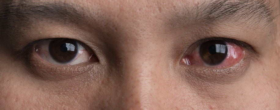 Human's red eye conjunctivitis