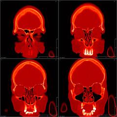 CT head image