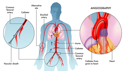 Labelled illustration of coronary angiography operations on adult male, white background.