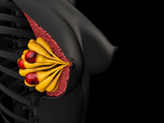 Breast cancer in human 3d illustration, isolated black