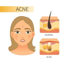 Skin problems Acne Young girl with acne. The structure of healthy skin and skin with acne.