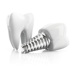 Tooth implant, illustration