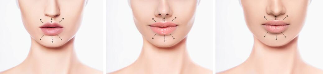 set lips after botulinum Toxin Injection, lip augmentation procedure and set beautiful perfect lips