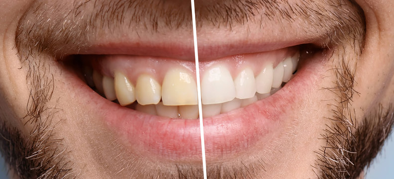 Smiling man before and after teeth whitening procedure, closeup