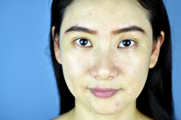 Skin preparing for cosmetic makeup, Nude face with acne scare problem, Asian woman bare skin.