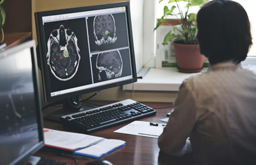 A radiologist is working on a CT scan of a brain tumor