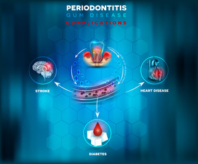 Periodontitis complications, bacteria enter in to the blood flow and there is a risk of stroke, diabetes and heart disease