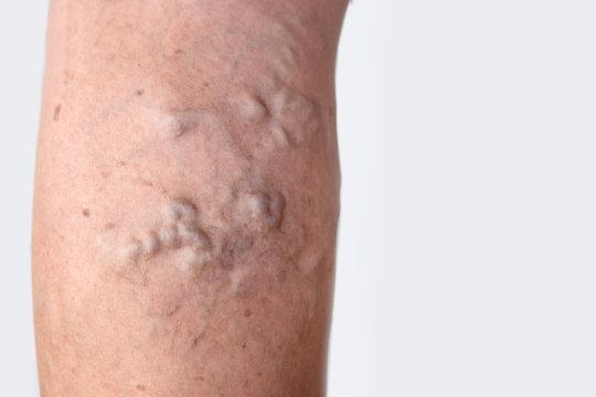 varicose veins on female leg skin closeup