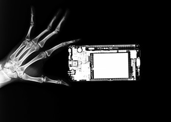 hands skeleton and mobile phone on x-ray