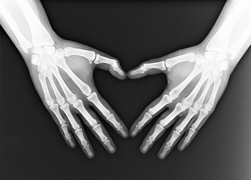 X-ray of the hands