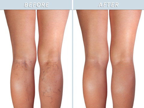 Healthy leg and the affected varicose veins