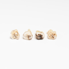 pulled out bad molars human teeth close up on white background