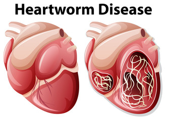 Heartworm disease diagram white background
