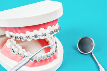 tooth model with metal wire dental braces.