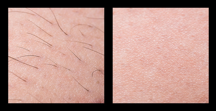 Depilation and sugaring. Hair removal. follicle. Woman leg with sugar or wax. Before and after. Process and steps of depilation. cosmetology, bodycare and beauty
