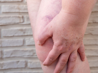 Left hand of woman holding injury knee