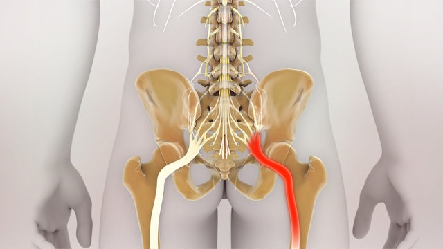 Sciatic Nerve Pain Medical Illustration