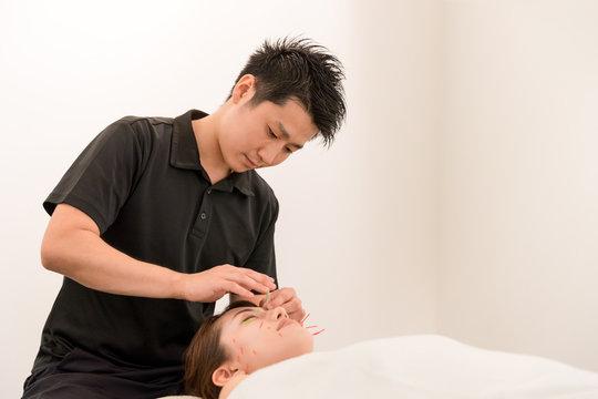 美容鍼灸の施術を受ける若い女性・鍼灸師の男性