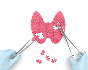Fototapeta Thyroid puzzle concept: hands of surgeon with surgical instruments (tools) performs thyroid surgery as a result of hypothyroidism, thyroid adenoma, thyroadenitis, euthyroid goiter, iodine deficiency obraz