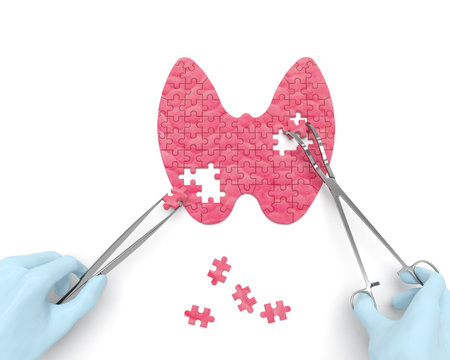 Thyroid puzzle concept: hands of surgeon with surgical instruments (tools) performs thyroid surgery as a result of hypothyroidism, thyroid adenoma, thyroadenitis, euthyroid goiter, iodine deficiency