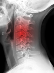 X-ray picture - Cervical spine