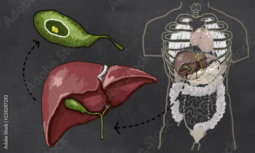 debris in gallbladder - 800×480