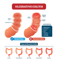 Ulcerative colitis vector illustration. Labeled anatomical infographic