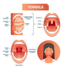 Tonsils vector illustration. Tonsillitis labeled structure diagram.