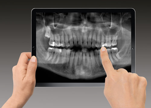 Close-up Of Woman Holding Digital Tablet - X-ray of Panoramic dental