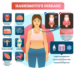 Hashimotos thyroiditis vector illustration. Labeled medical diagram.