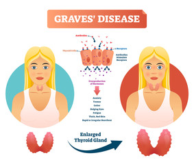 Graves disease vector illustration. Labeled diagnosis symptoms diagram
