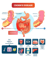 Crohns disease vector illustration. Labeled diagram with diagnosis.