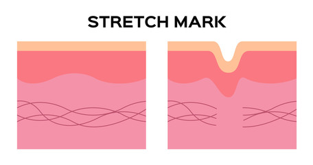 stretch mark and collagen vector