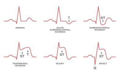 diagnosis myocardial ischemia vector / NSTEMI, STEMI