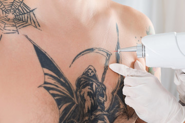 Man undergoing laser tattoo removal procedure in salon, closeup
