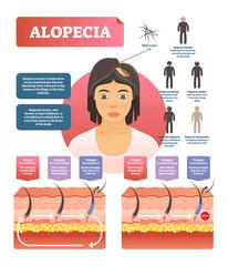 Alopecia - hair loss autoimmune disease medical vector diagram illustration