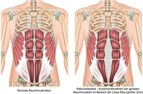 Rektusdiastase Anatomie Bauchmuskeln vektor illustration